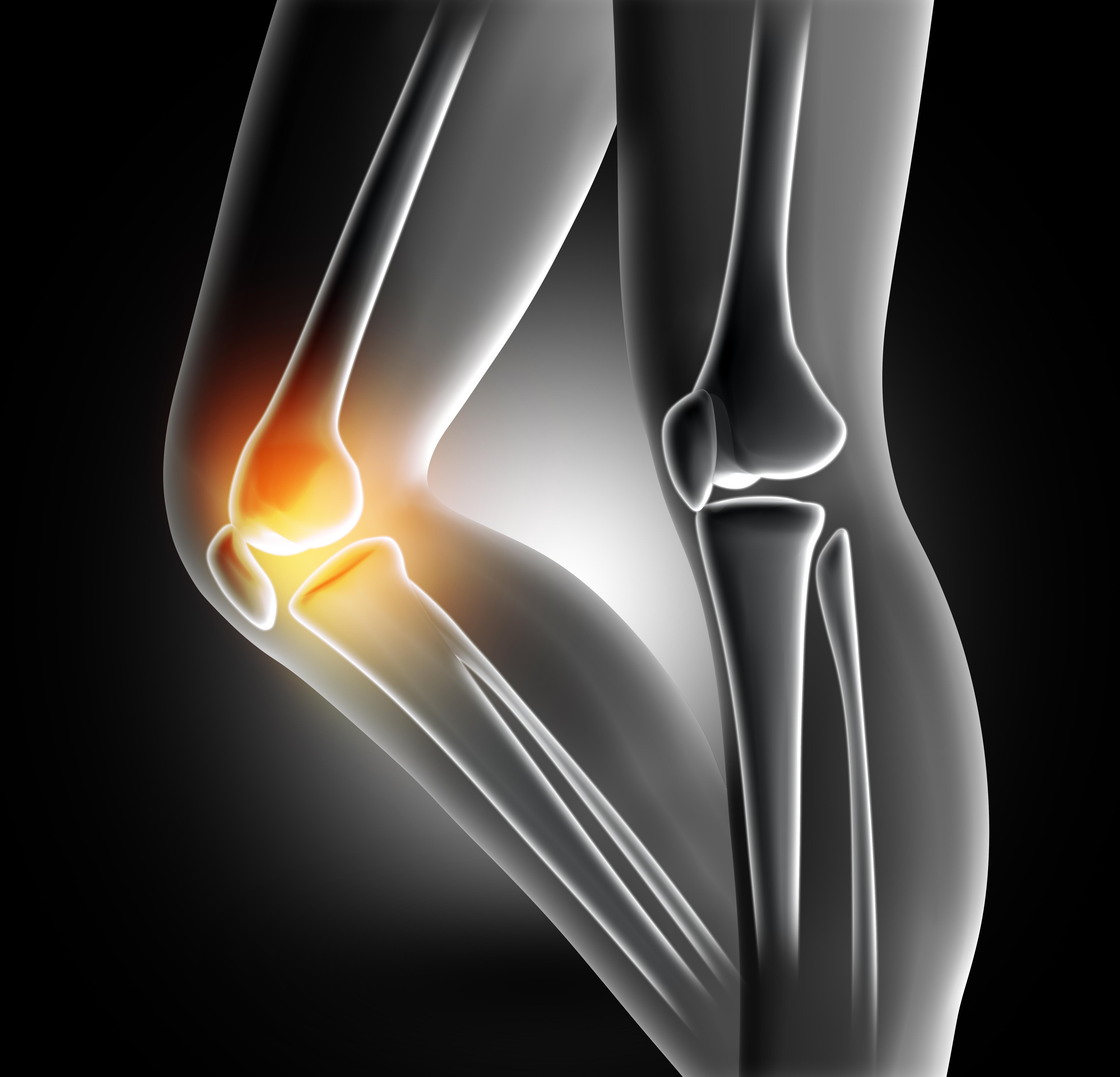 膝の痛みを楽にする方法を学ぼう!at 尼崎